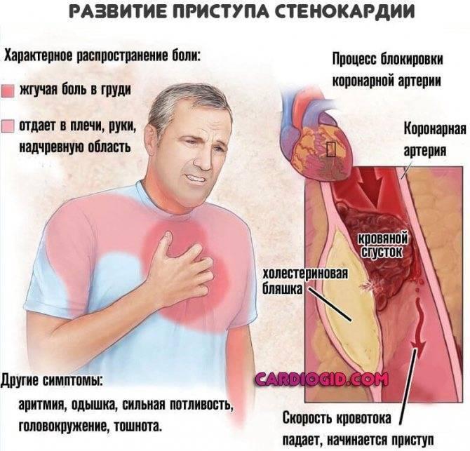 Болит сердце после выдоха   всердце.ком