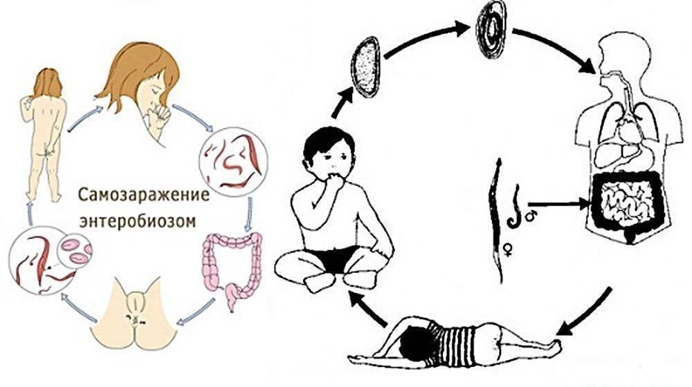 Острицы у детей: симптомы и лечение остриц у детей - энтеробиоз
