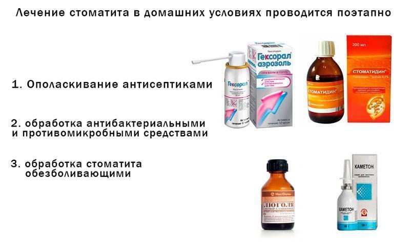 Стоматит: лечение у взрослых в домашних условиях