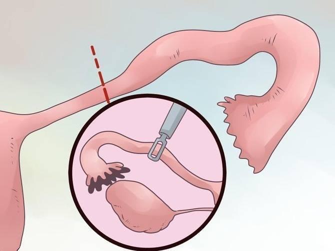 Лапароскопия маточных труб - операция и послеоперационный период, магнитотерапия, диета, стимуляция - статьи эко-блог |  эко-блог