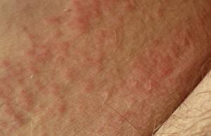 Покраснение кожи и сыпь в паху у мужчин: причины и лечение