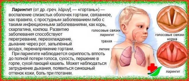 Коклюш у детей — симптомы и лечение (антибиотики, домашние средства), профилактика