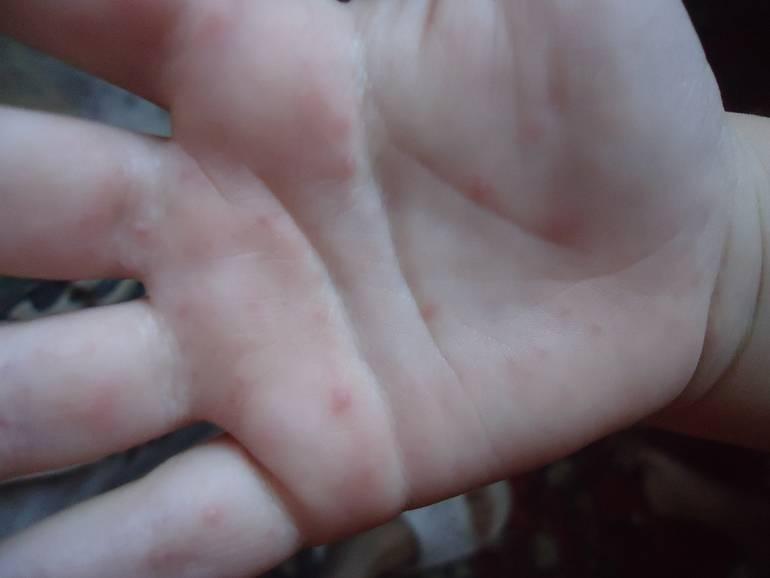 Сыпь на ногах у подростка фото с пояснениями