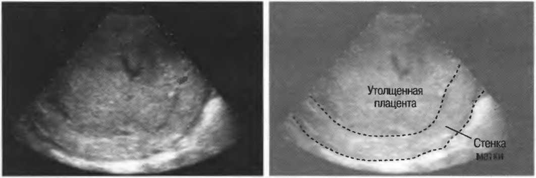 Преждевременное старение плаценты при беременности: что нужно знать
