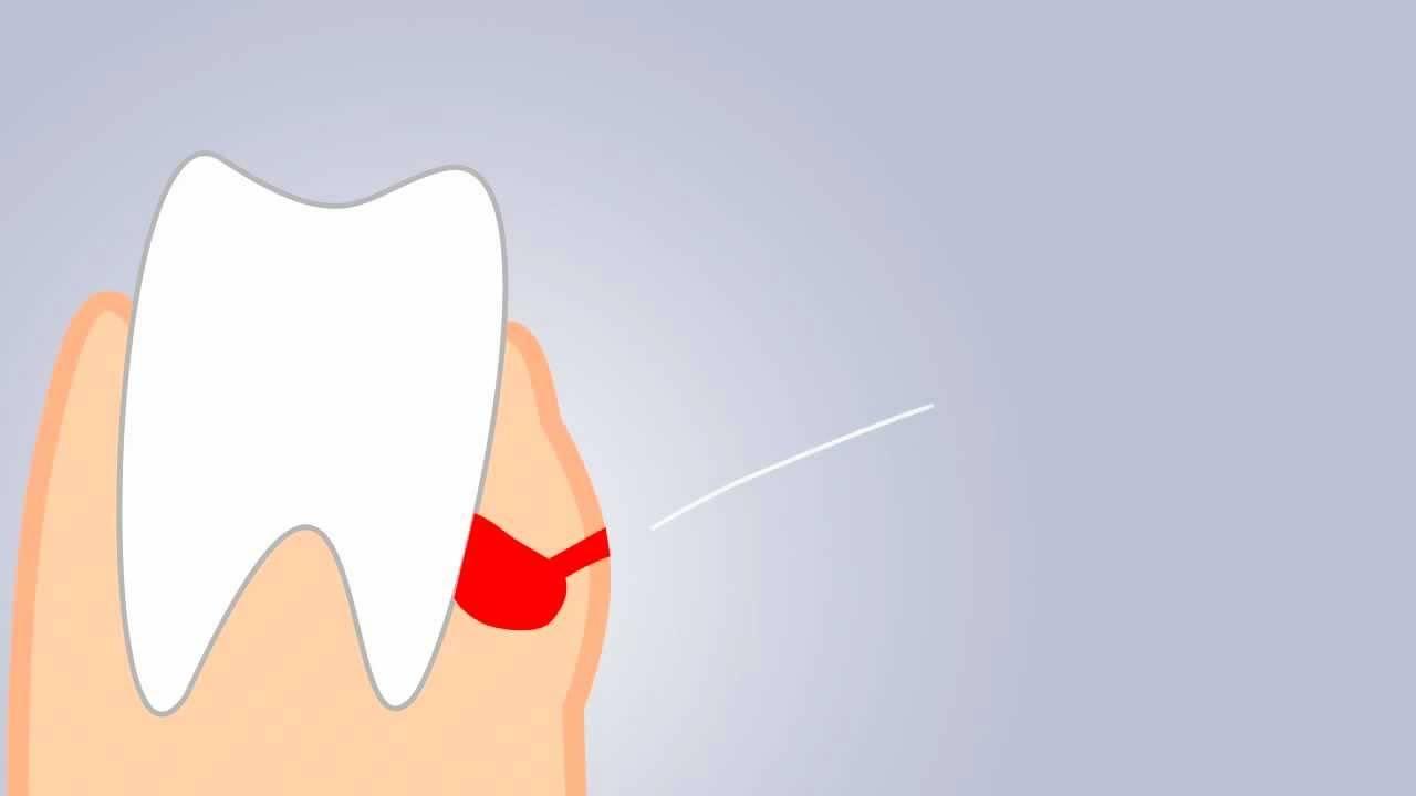Как распознать и лечить флюс молочных зубов у детей