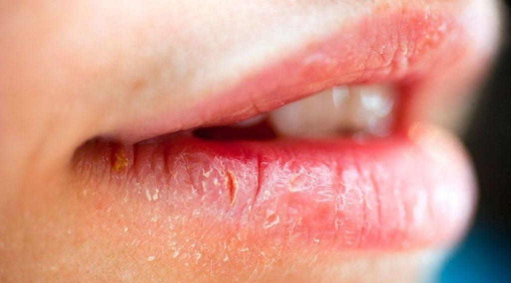 Стоматит на губе: фото и лечение у ребенка различных видов этого заболевания