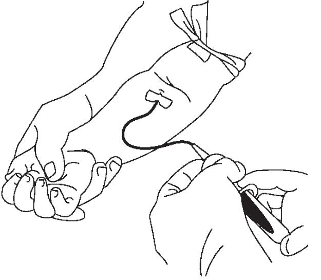 Как у грудничка берут кровь из вены