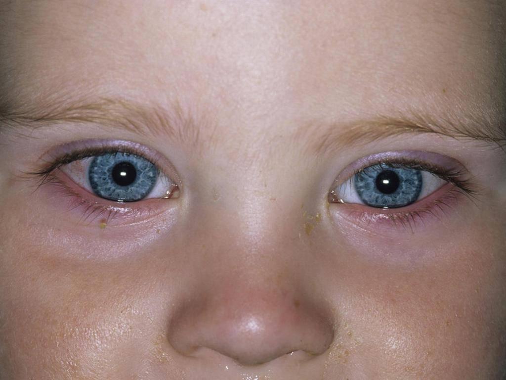 Конъюнктивит: причины, симптомы, лечение и профилактика у детей и взрослых