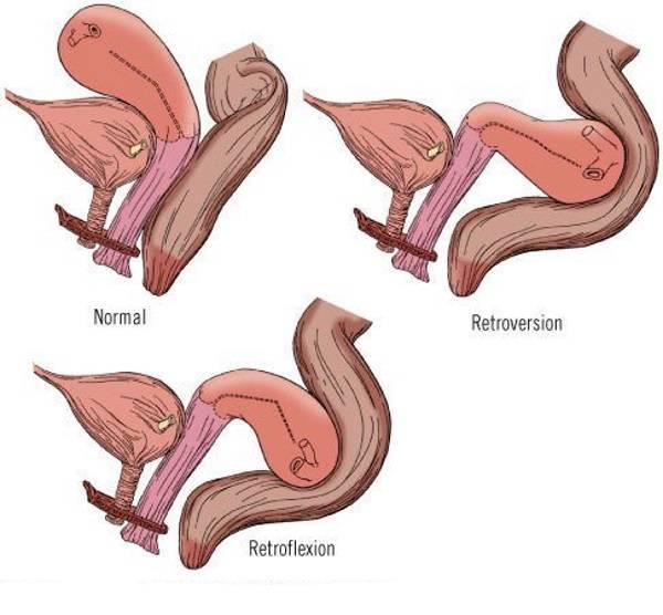 Матка седловидной формы: причины, как забеременеть, позы для зачатия, последствия