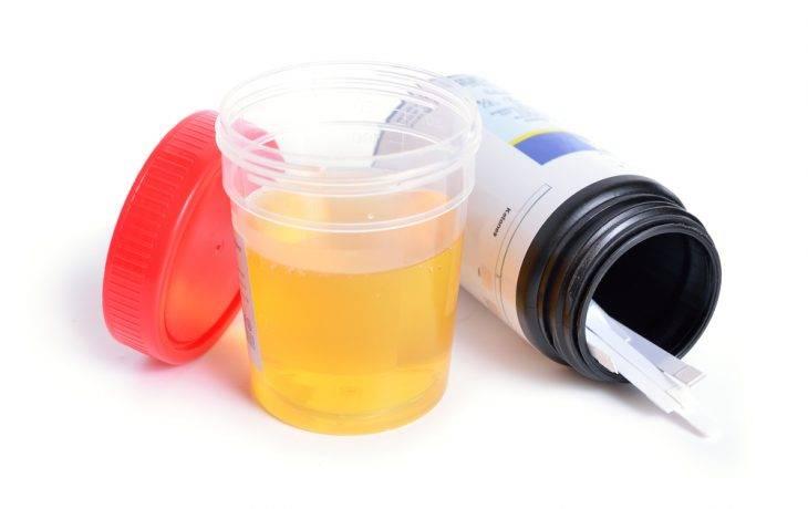 Ацетон в моче у ребенка: симптомы, признаки, причины, показатель нормы, лечение высокого уровня ацетона и следов ацетона в моче по комаровскому. диета при ацетоне у детей