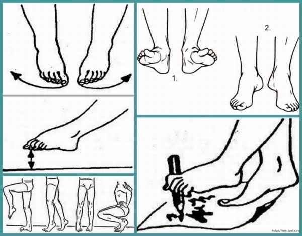 Е. комаровский: вальгусная деформация стопы у детей, плоскостопие и плосковальгусные стопы