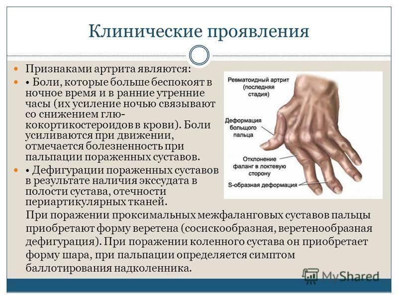 Ревматоидный артрит у детей ювенильный, симптомы прогноз