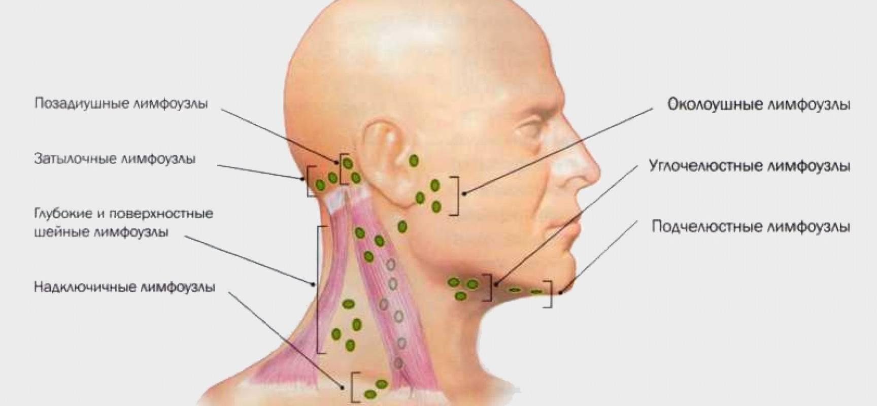 Воспалились лимфоузлы на шее, что делать, как лечить. чем лечить лимфоузлы на шее у взрослого | здоровье человека