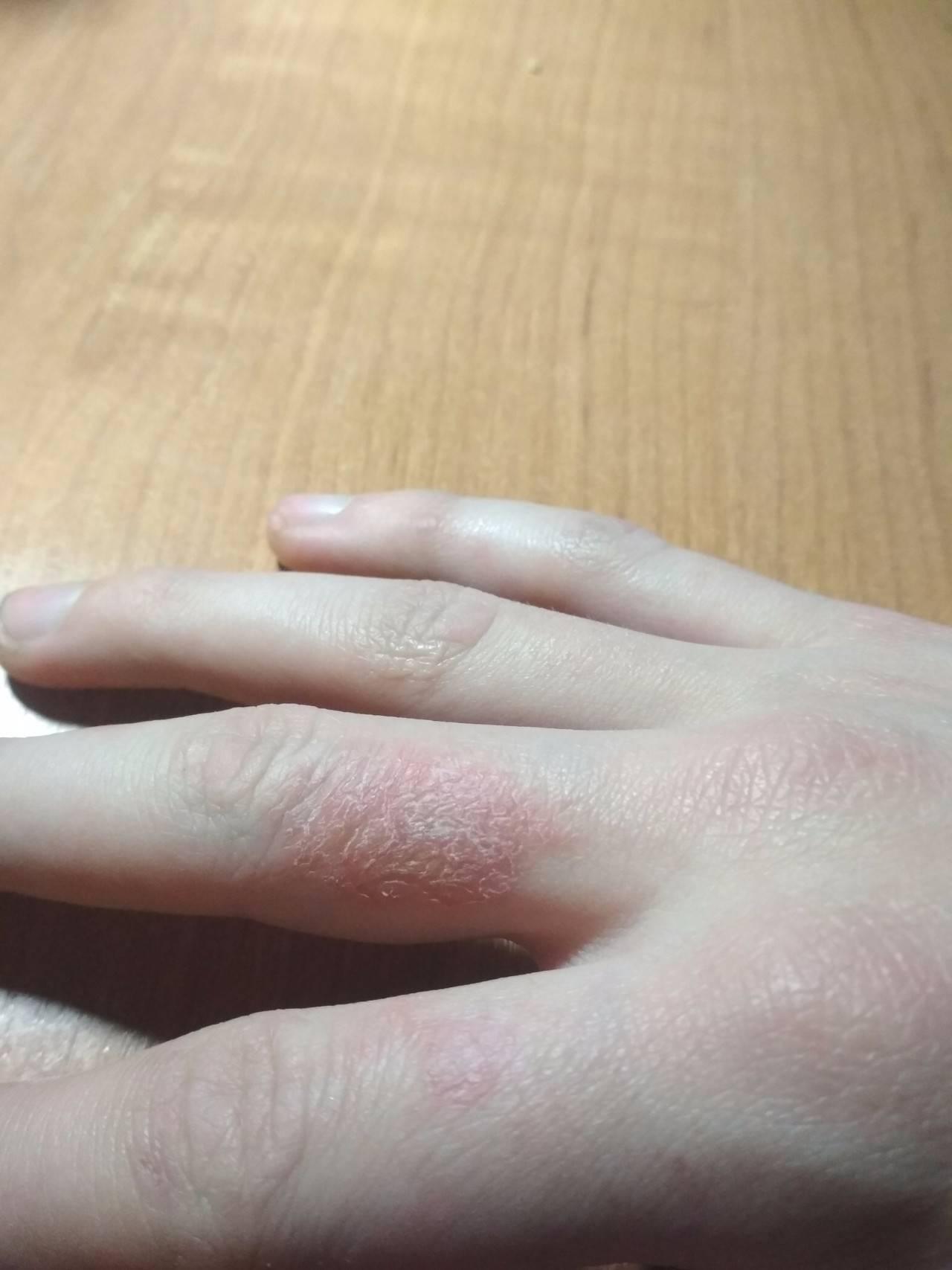 Шелушиться кожа на пальцах рук и ног у ребенка: почему и что делать