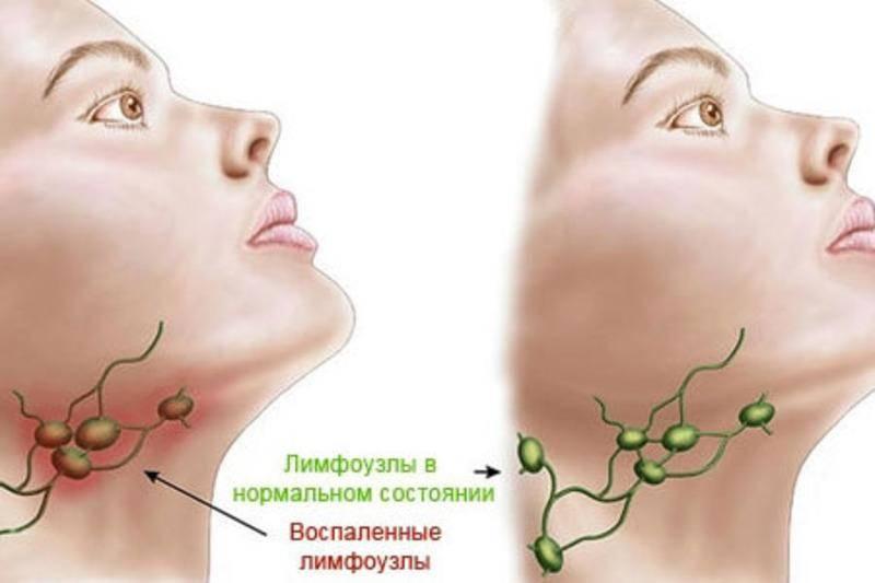 """Почему у ребенка воспаляются лимфоузлы на шее, и как это лечить? — журнал """"рутвет"""""""