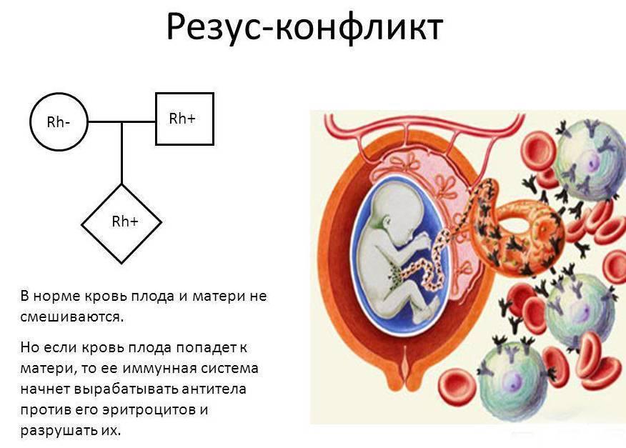 ''кровные враги''. беременность и резус-конфликт. отрицательный резус фактор при беременности