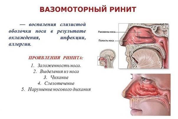 Препараты для лечения вазомоторного ринита. средства народной медицины