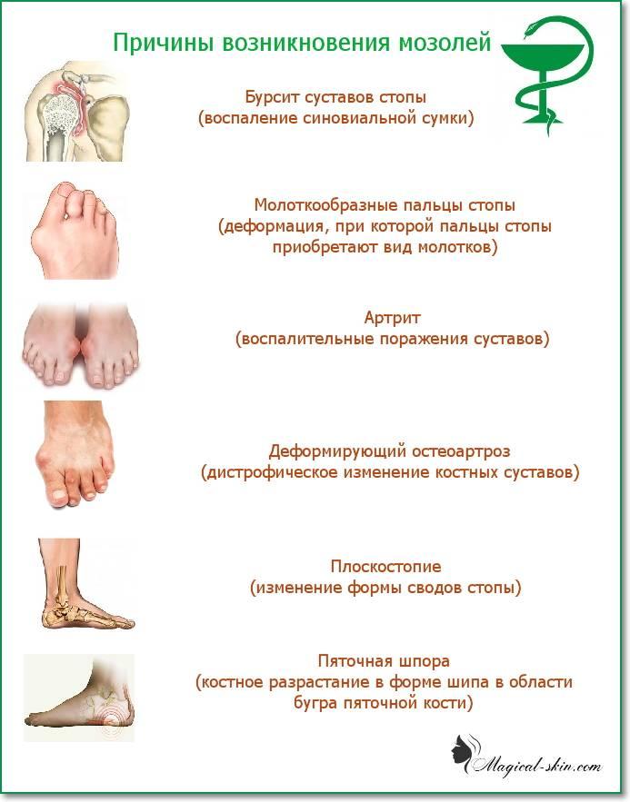 Мозоль у ребенка на ноге (на пальце, пятке, стопе) — что делать и чем лечить?