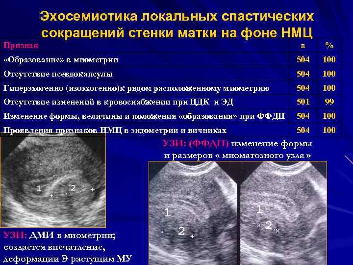 Гипертонус миометрия при беременности: что это такое и чем грозит матери и малышу?