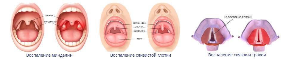 Здоровое горло у ребенка 3 лет фото | медик03