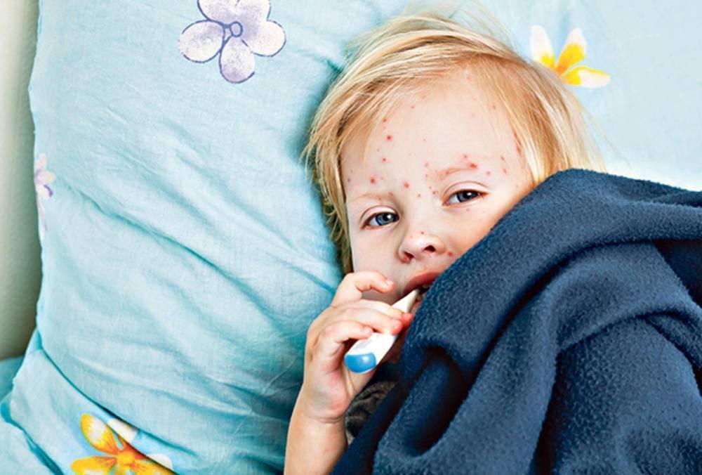 Ветрянка у детей: период инкубации, основные симптомы, первые признаки болезни и стадии. как лечится ветрянка у детей – на бэби.ру!