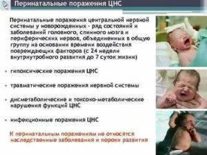 Поражение цнс новорожденных: причины, степень тяжести и реабилитация