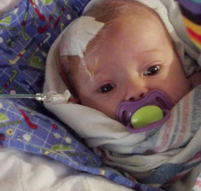 Как проявляется и чем опасна киста в голове у новорожденного