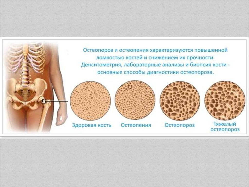 Остеопороз у детей (врожденный, ювенильный): симптомы и лечение, причины у подростков
