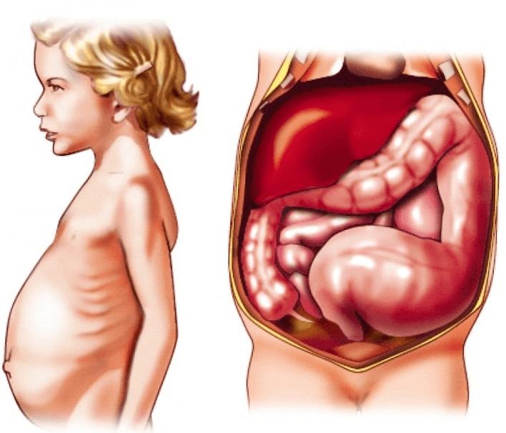 Болезнь гиршпрунга у детей и взрослых, симптомы и лечение у новорожденных