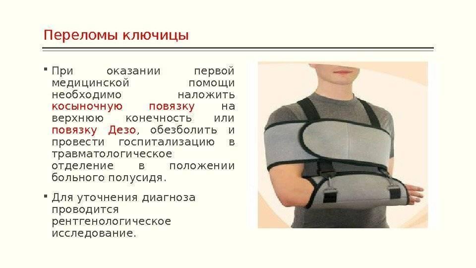 Перелом ключицы у детей: лечение и последствия / mama66.ru