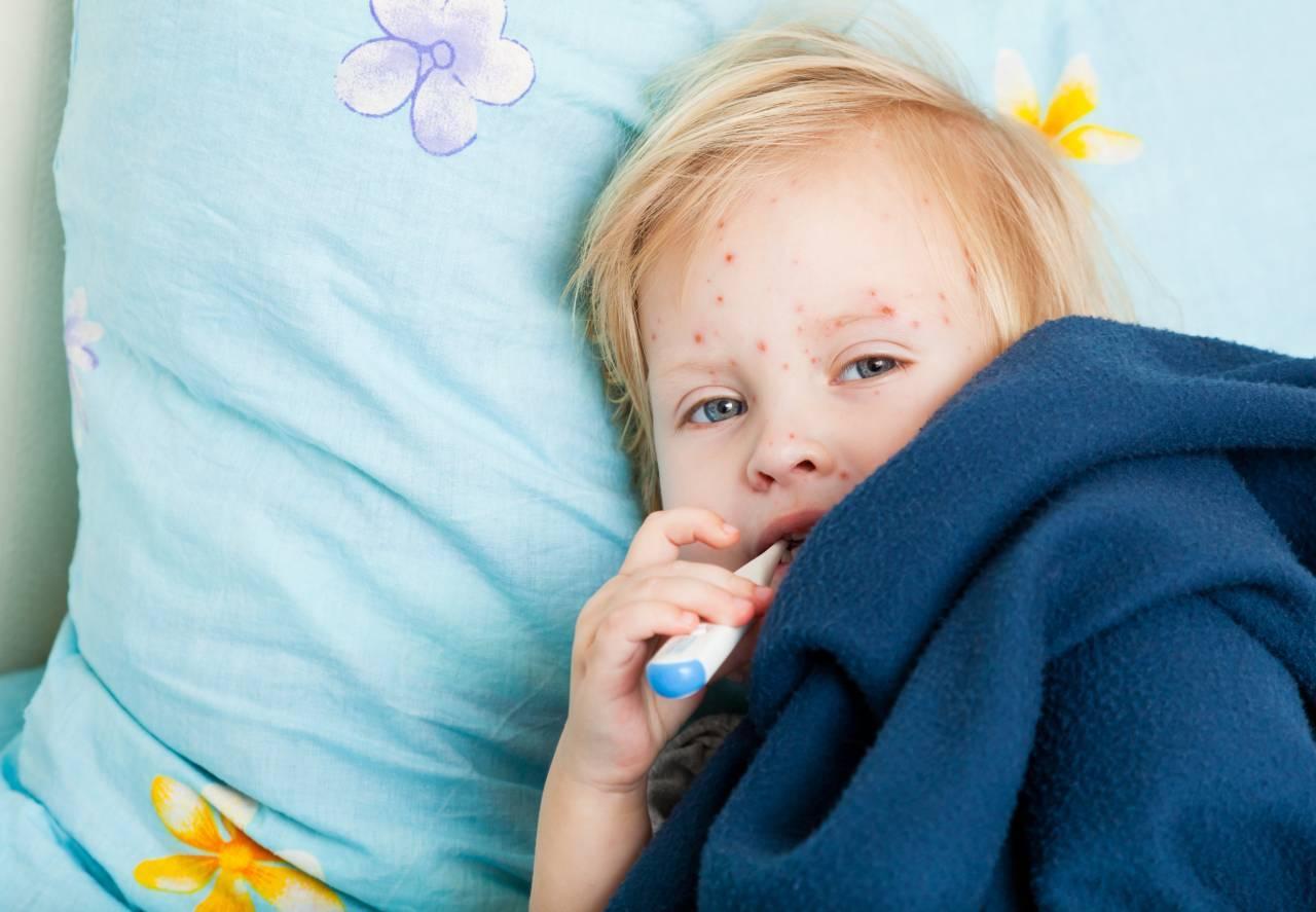 Профилактика ветряная оспа у детей