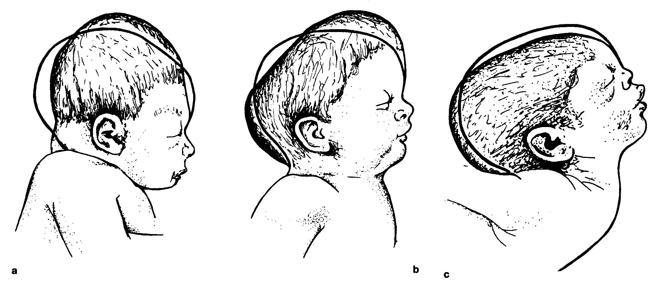 Кефалогематома у новорожденных: все поправимо!