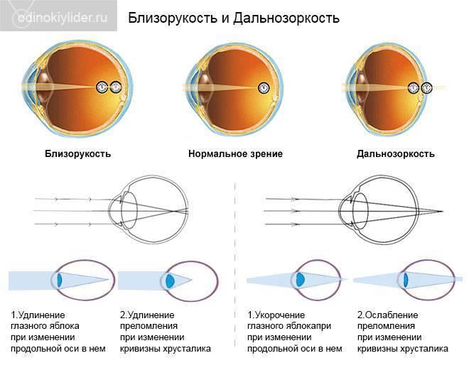 От чего у детей дальнозоркость (гиперметропия): средняя и высокая