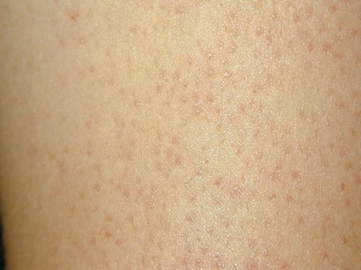 Сыпь телесного цвета у ребенка • аллергия и аллергические реакции