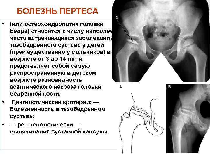 Болезнь пертеса тазобедренного сустава у детей: что это, симптомы и лечение | все о суставах и связках