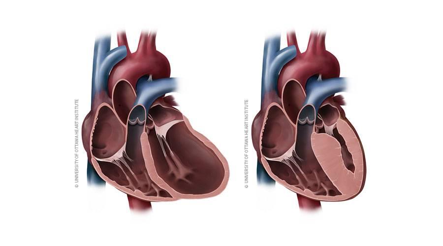 Что такое кардиопатия и кардиомиопатия у детей: причины, симптомы и лечение. признаки, виды и способы лечения кардиопатии у детей
