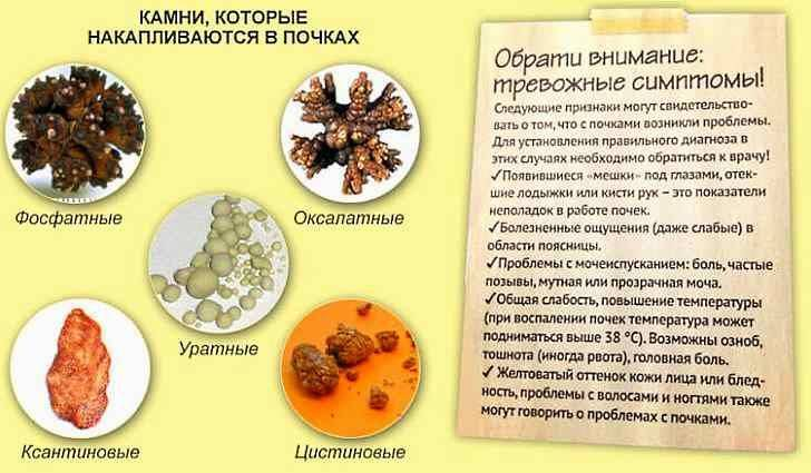 У ребенка обнаружили при узи соли в почках - нефрологияонлайн