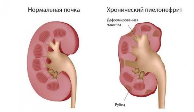Пиелоэктазия у детей - фото, причины, симптомы, лечение и осложнения