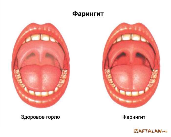 Сыпь во рту фото