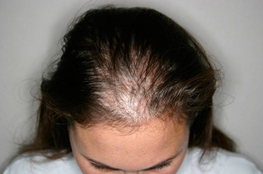 Что такое алопеция и какие у нее симптомы?