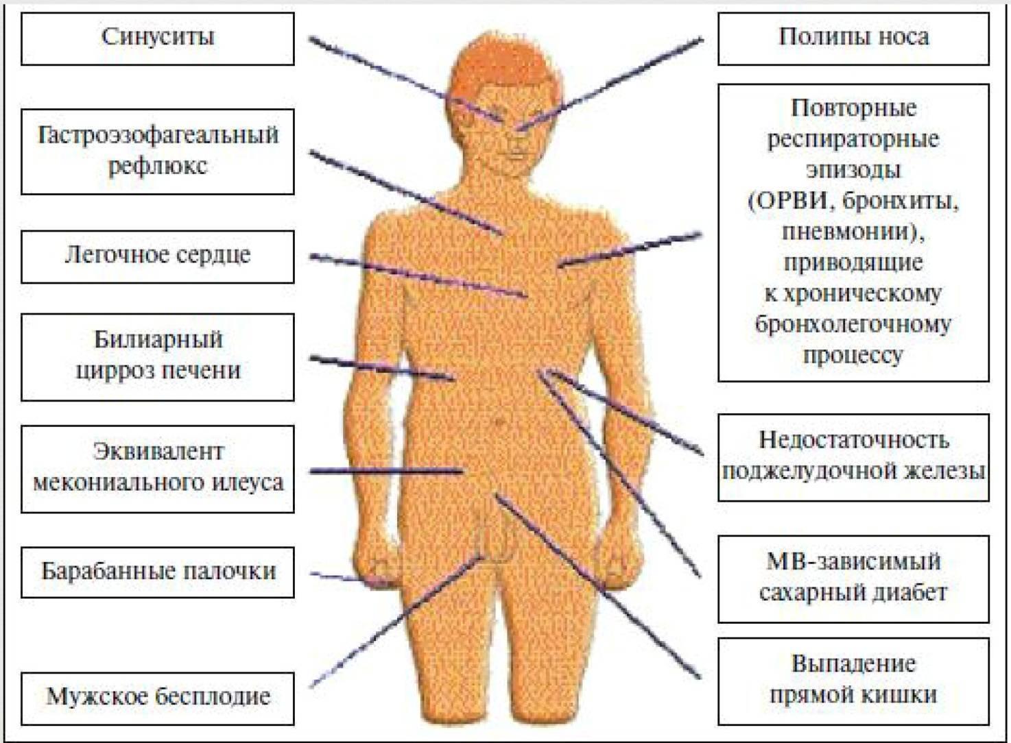 Муковисцидоз у детей и новорожденных - что это за болезнь, признаки, симптомы и причины, диагностика и лечение с фото