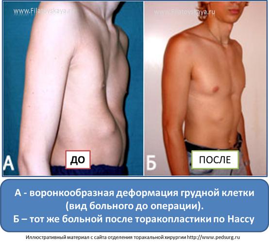 Деформация грудной клетки у ребенка: лечение килевидной, воронкообразной и других форм, фото, массаж - сила и здоровье