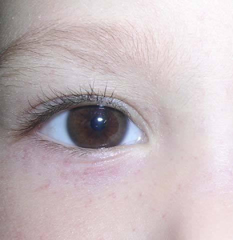 Прыщ на веке глаза: причины, виды (белый, красный, маленький, внутри и снаружи, под ресницей), прыщики у взрослых и новорожденных детей