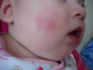 Красные шершавые пятна на теле и лице у ребенка: причины появления и методы лечения - все о суставах