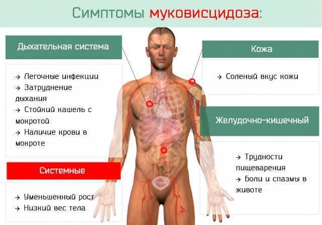 Муковисцидоз кишечная форма: симптомы у детей и взрослых