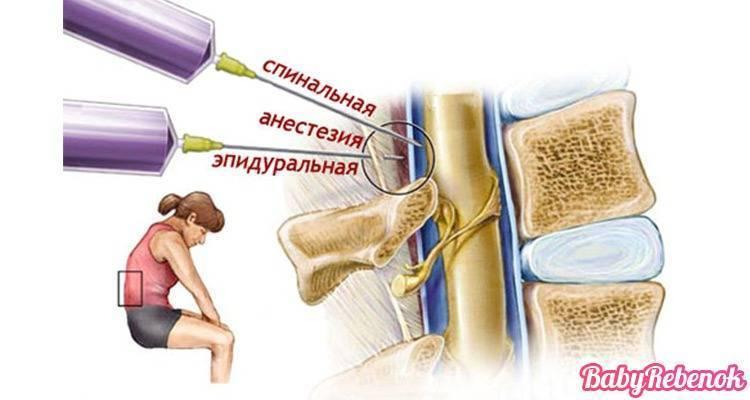 Отличие эпидуральной анестезии от спинальной. в чем разница между эпидуральной и спинальной анестезией, какая безопаснее и что лучше выбрать? особенности проведения спинномозгового обезболивания