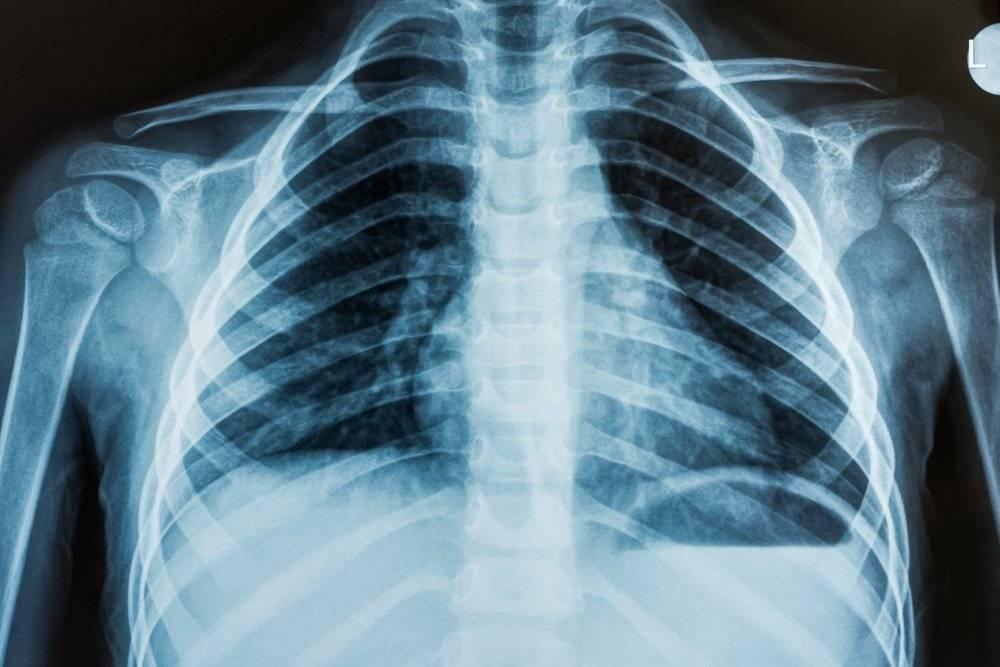Проведение рентгена для новорожденных детей