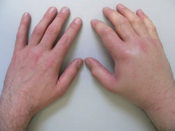 Перелом руки у ребенка: как лечить травмы у детей