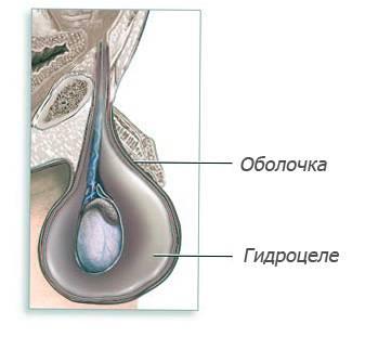 Водянка яичек у новорожденных мальчиков — что это, симптомы и лечение
