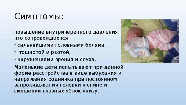 Внутричерепная гипертензия у детей симптомы